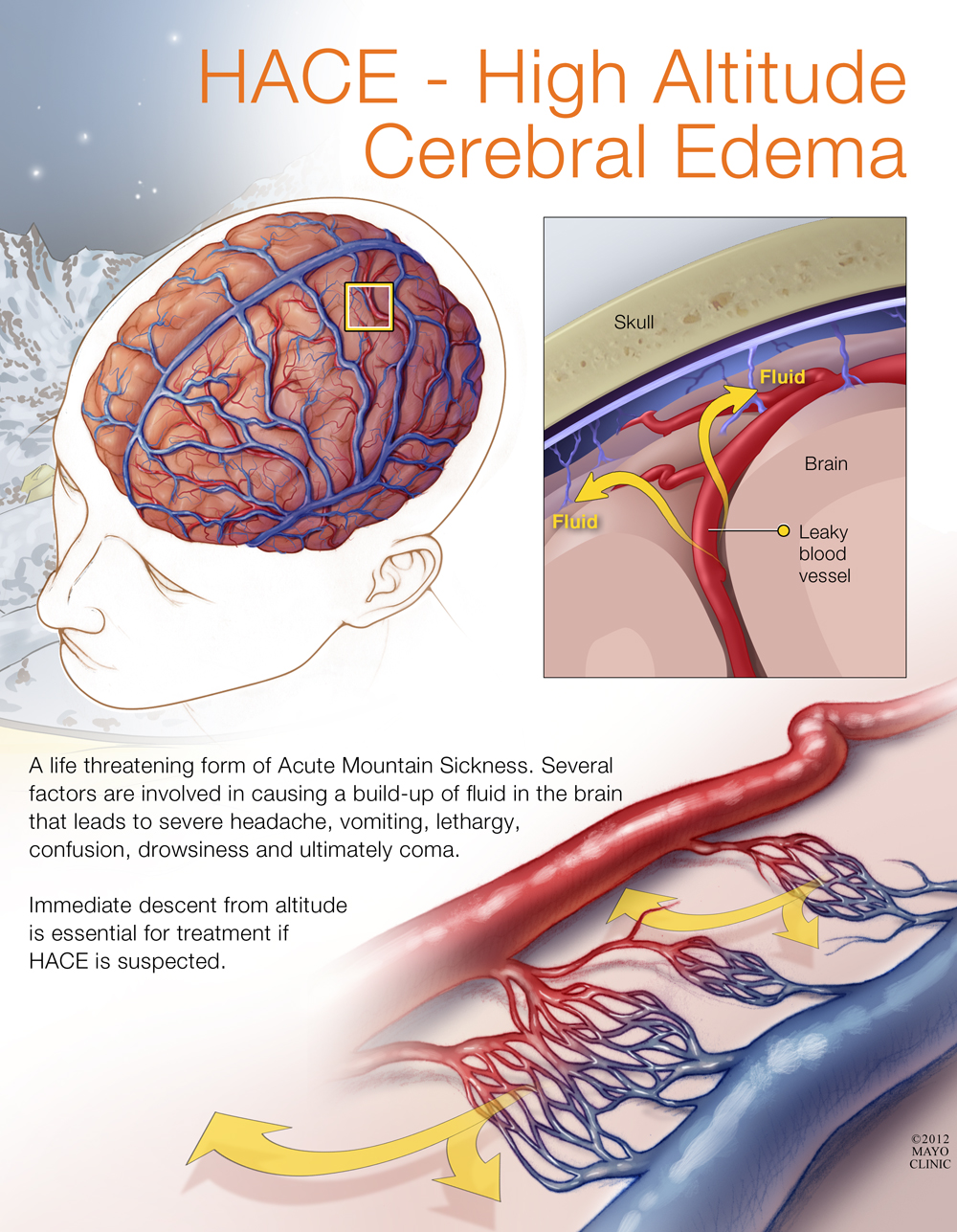 HACE or High Altitude Cerebral Edema | Advancing the Science