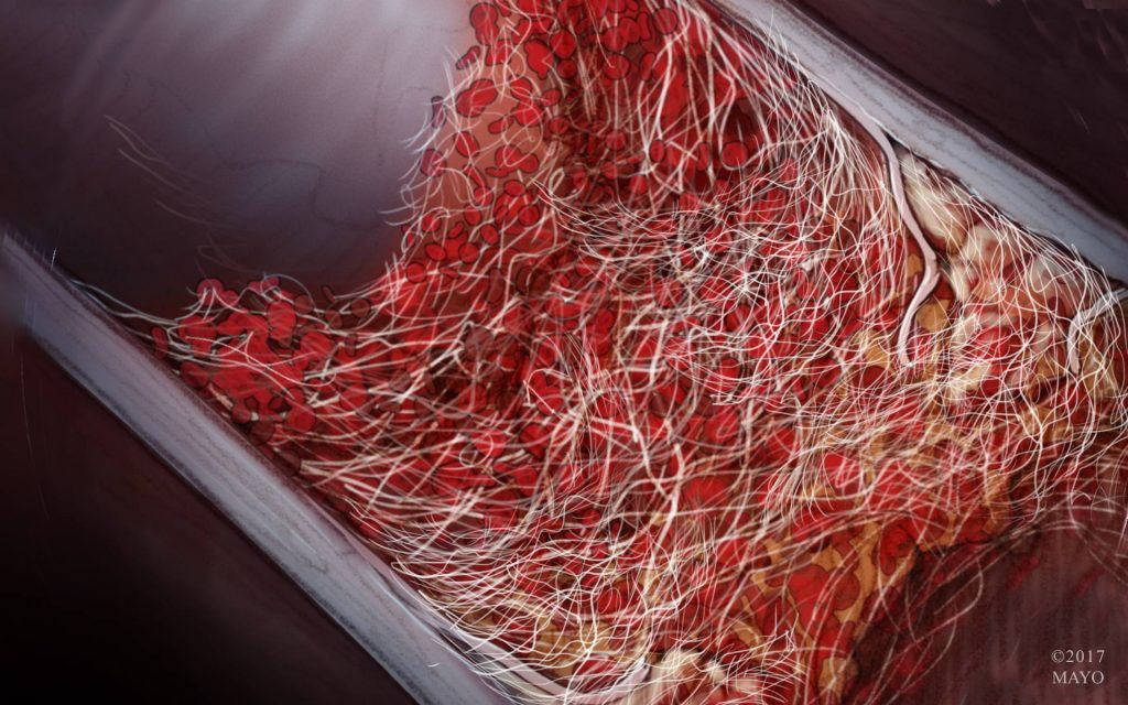 Closeup illustration of a clot in a blood vessel.