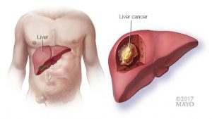 medical illustration of torso with liver highlight and cutaway of liver showing cancer