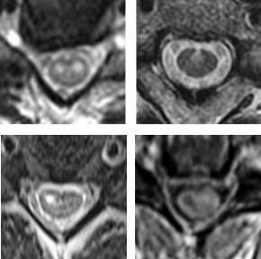 Diagnosing spinal cord stroke