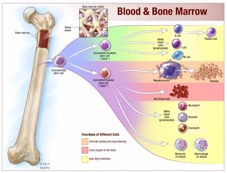 Bone Marrow Stem Cells Stall Out in Chronic Lymphocytic