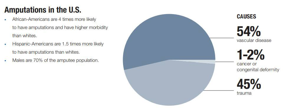 Pie chart of amputations in the United States. 54 percent of causes are from vascular disease, 45 percent from trauma, 1 to 2 percent from cancer or congenital deformity.