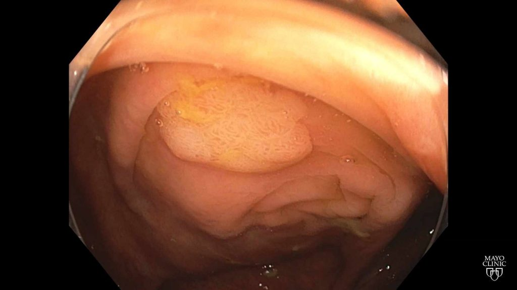 colonoscopy scope camera view