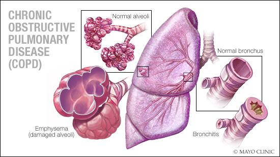 medical illustration of COPD, with the parts of the lung and diseased areas identified