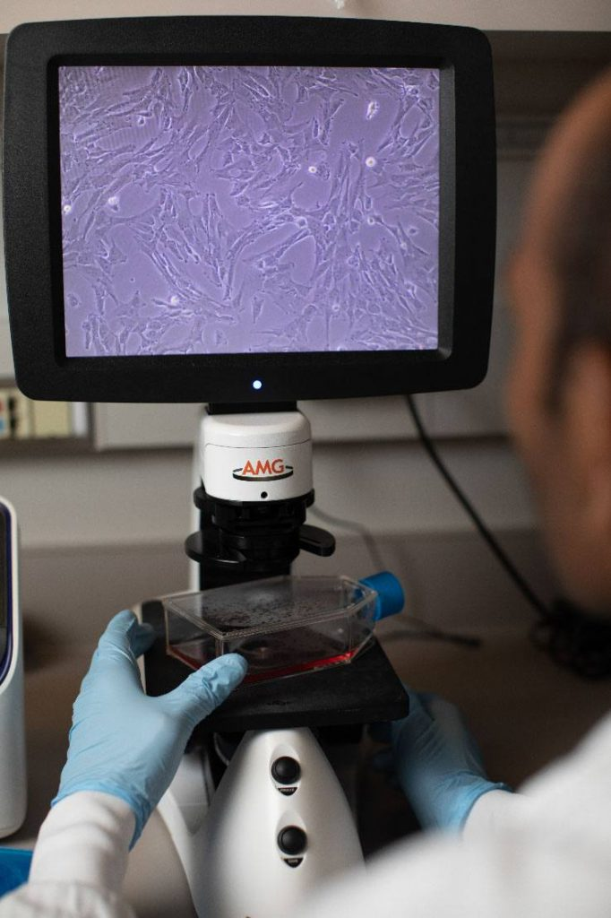 purple-stained cells on screen of electronic microscope, gloved researcher holding clear container with purplish liquid in place on microscope tray