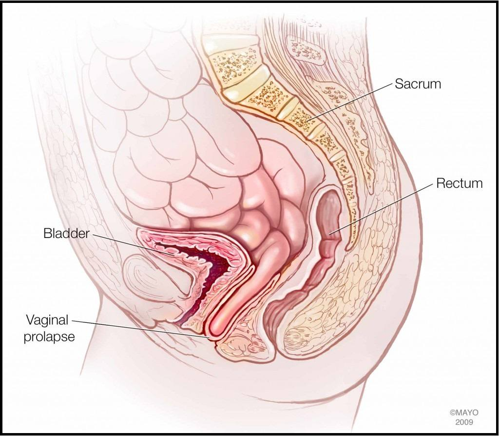 medical illustration of vaginal prolapse