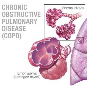 medical illustration of lungs with both healthy tissue and diseased tissue expanded illustrations