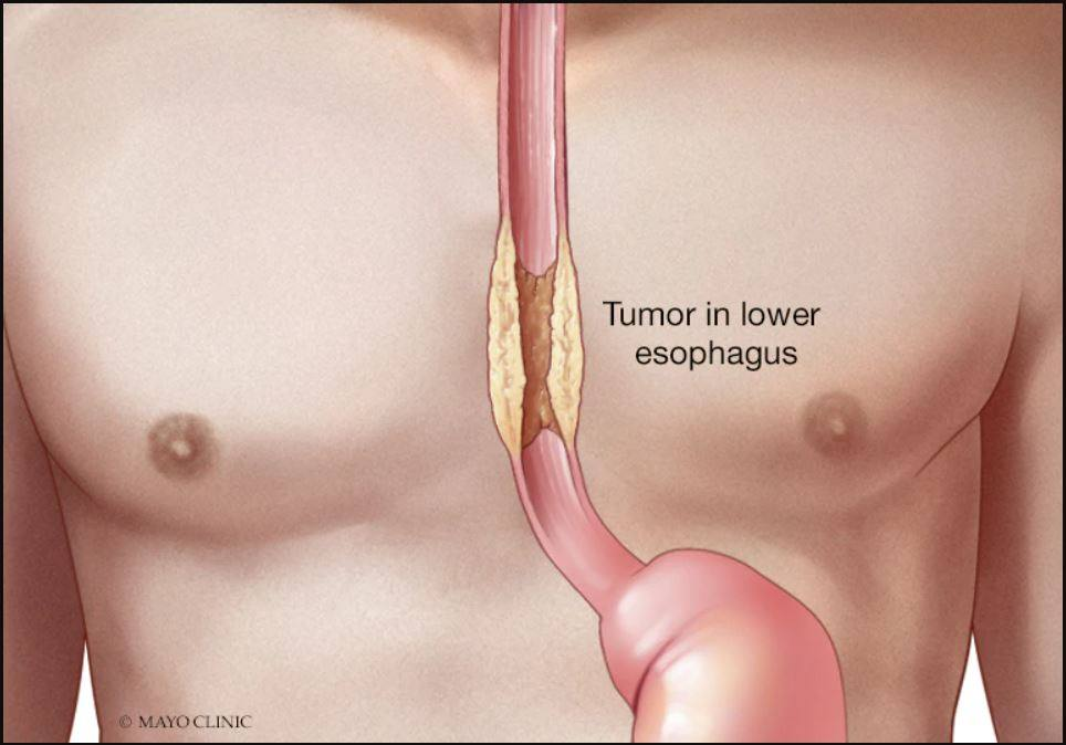 Rare esophageal cancer hits younger patients especially hard