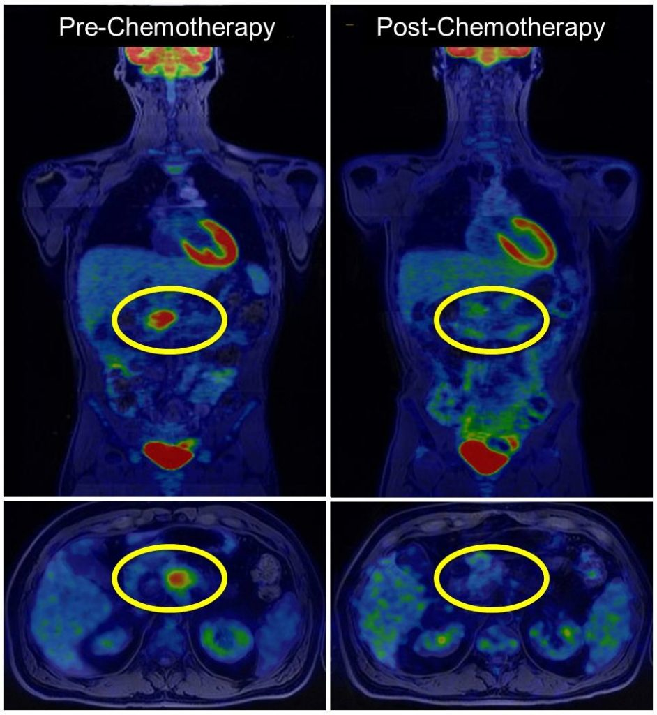 PET/MRI biomarkers guide personalized treatment for patients with pancreatic cancer, study finds