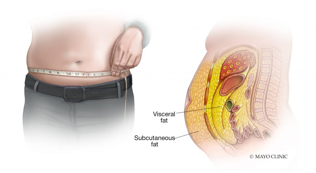 artistic rendering of male torso with measuring tape, and side view cut away of abdomen showing visceral and subcutaneous fat