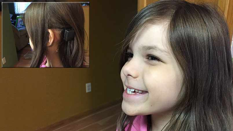 Delilah Boberg shows of her Baja implant that restored hearing to hear left ear.