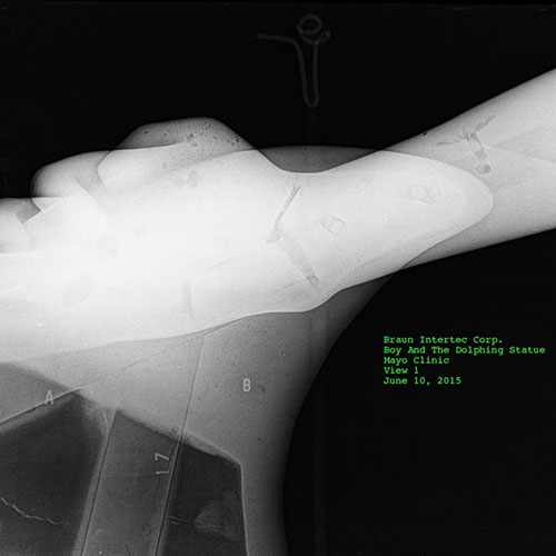 An X-ray of the boy's wrist.