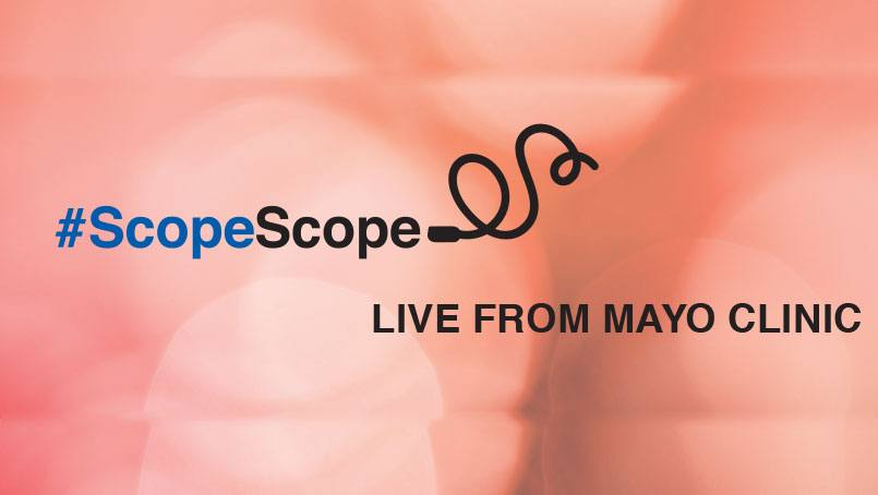 Mayo Clinic will be streaming live video of Lee Aase's colonoscopy on Periscope in an online broadcast event dubbed #ScopeScope.