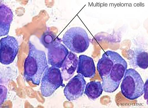 Of Mice and Myeloma: Researchers Unlock Promising New Model in Fight Against Cancer