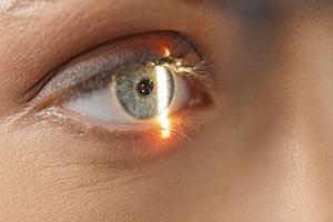 Aging Eyelids