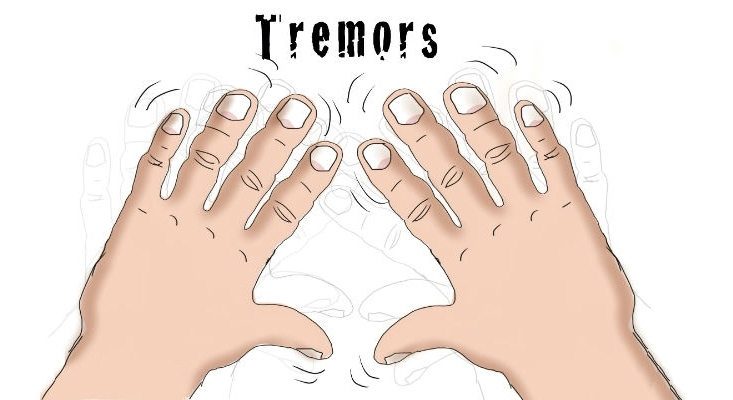 Essential Tremor Support Group