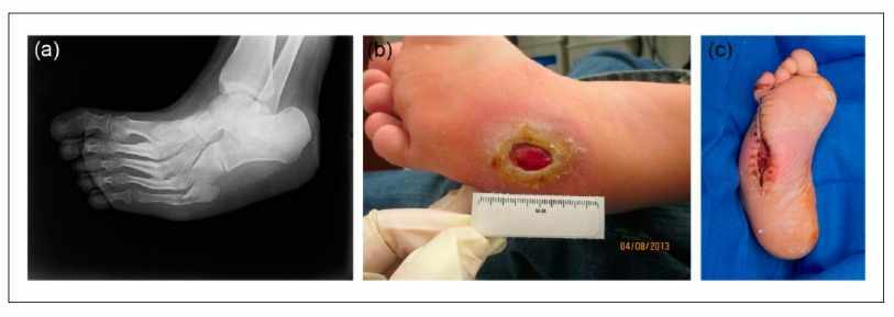 Wound management of chronic diabetic foot ulcers: From the basics to regenerative medicine