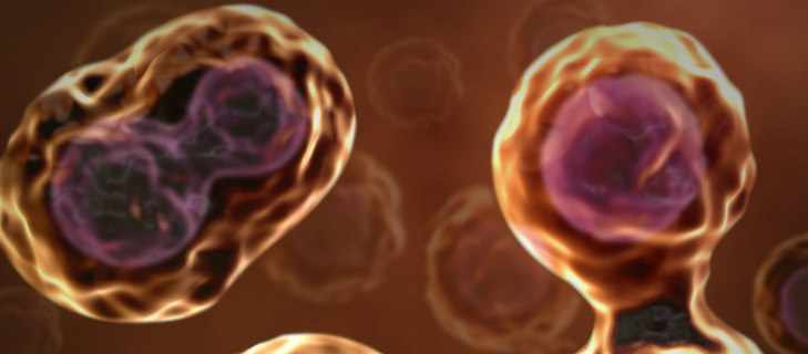Clinical Trial for Stem Cell Treatment of Disc Degeneration