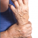 One in Five Americans Have Arthritis