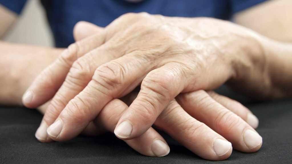 close-up de mãos com artrite reumatóide