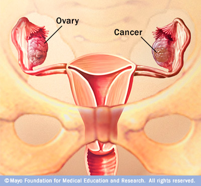 Illustration of what ovarian cancer looks like