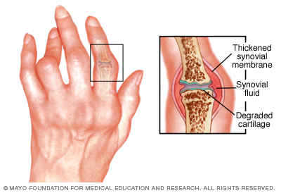 Image of hand with Rheumatoid Arthritis