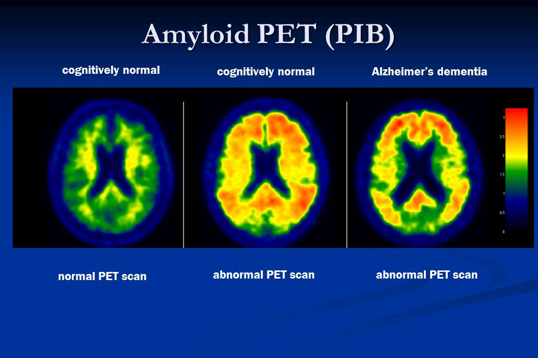 Physician's slide of brains affected by dementia and Alzheimers