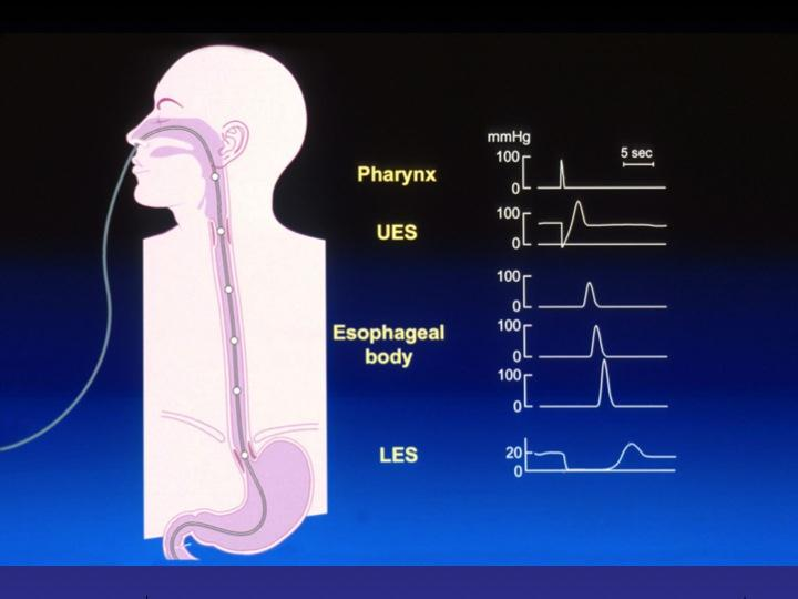 Graphic of Swallowing Manometry