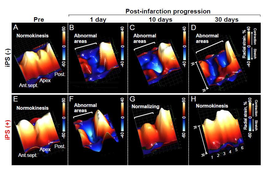 Regenerative medicine slide of eight frames depicting post-infarction progression