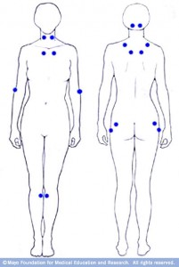 sketch of human body, front and back, with pain points of fibromyalgia