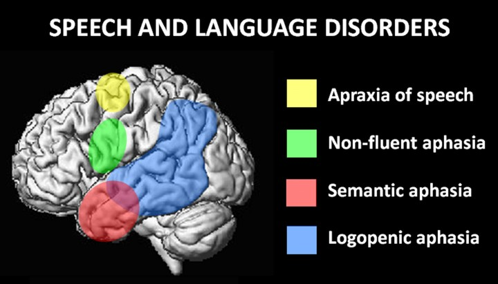 """Graphic of the Brain with the titld """"Speech and Language Disorders""""."""
