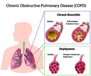 Ilustración de pulmones y bronquios con EPOC