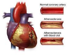 Ilustración de la presencia de placas en la arteria coronaria