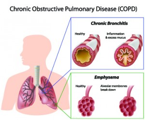 COPD illustration of lungs and bronchial tubes