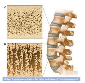 ilustración de la densidad ósea