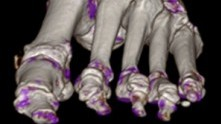 Frontal view of CT scan of foot with gout