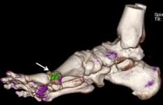 imagen de la tomografía computarizada de un pie que muestra los cristales de ácido úrico