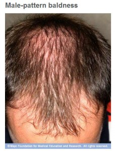 Male-pattern baldness and hair loss