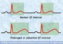 Ilustración de un ECG durante un intervalo QT normale y un intervalo QT prolongado
