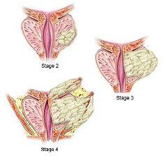 Ilustración del cáncer de próstata