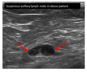 AUS BMI Image Suspicious Node Obese Patient