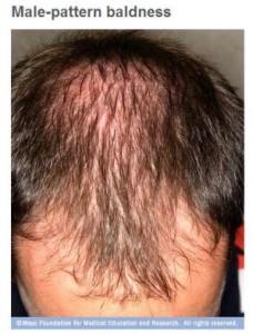 calvicie de patrón masculino y caída del cabello