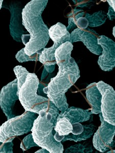 Certain strains of the campylobacter bacteria, seen above, have long been implicated in preterm labor and spontaneous abortion in livestock. Scientific evidence has started mounting that this foodborne pathogen may trigger preterm labor in humans, as well. New tests from the Mayo Clinic-Whole Biome collaboration aim to detect a range of bacteria, such as campylobacter, to help expectant mothers achieve full-term pregnancies.