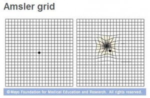 Amsler grid used to check for macular degeneration