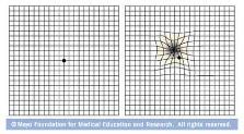 Utilización de la rejilla de Amsler para revisar la degeneración macular