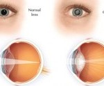 picture of eyes - normal and with cataracts