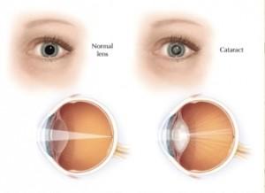 Ilustración de los ojos: normales y con cataratas