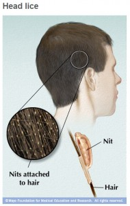 Mayo illustration of human hair with head lice