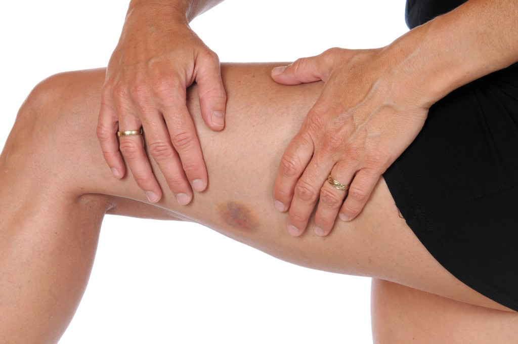 Woman's leg with bruise