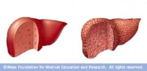 Hígado normal (izquierda) e hígado con fibrosis
